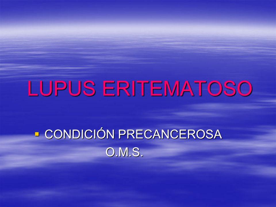 LUPUS ERITEMATOSO CONDICIÓN PRECANCEROSA O.M.S.