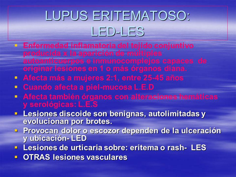 LUPUS ERITEMATOSO: LED-LES