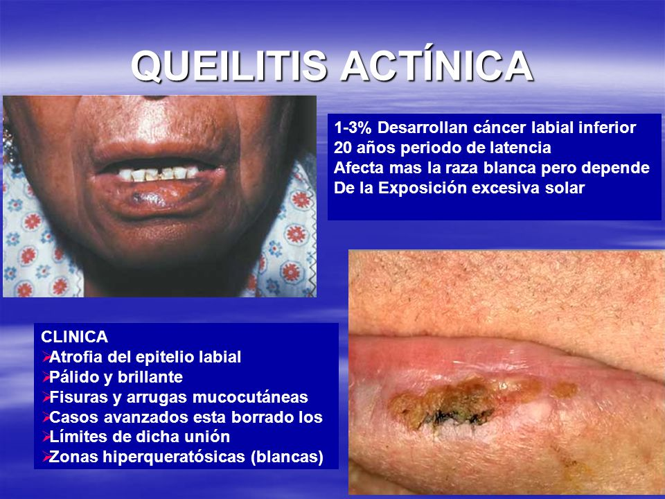 QUEILITIS ACTÍNICA 1-3% Desarrollan cáncer labial inferior