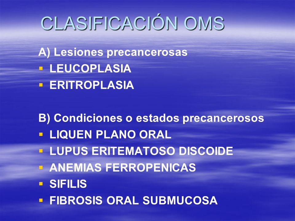 CLASIFICACIÓN OMS A) Lesiones precancerosas LEUCOPLASIA ERITROPLASIA