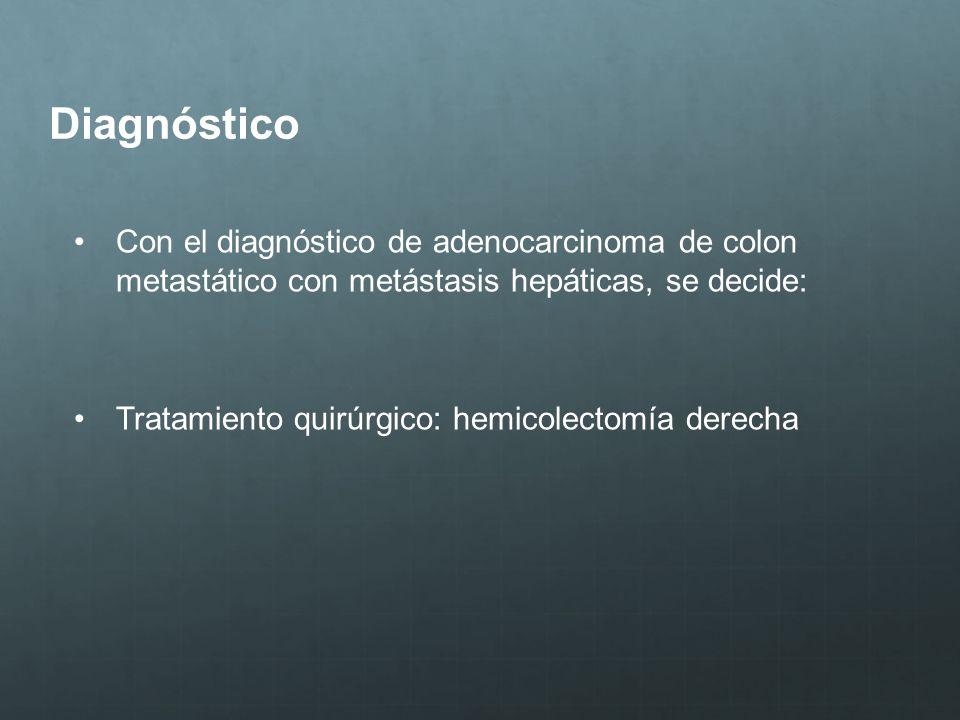 DiagnósticoCon el diagnóstico de adenocarcinoma de colon metastático con metástasis hepáticas, se decide: