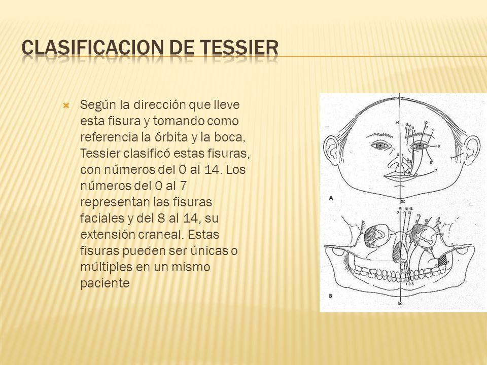 CLASIFICACION DE TESSIER