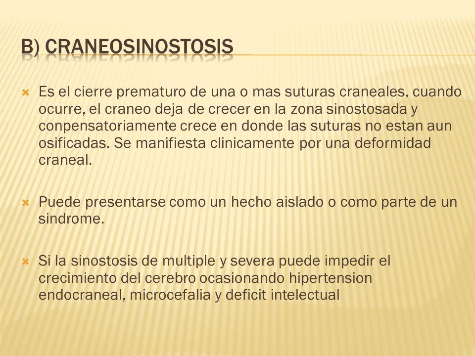 B) CRANEOSINOSTOSIS
