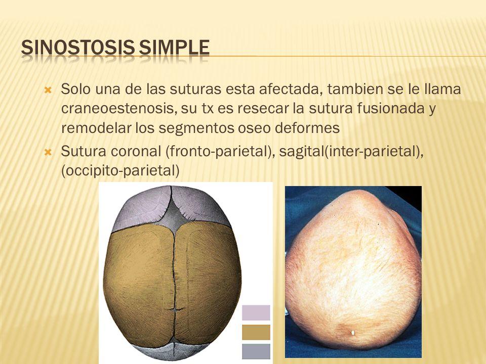 SINOSTOSIS SIMPLE