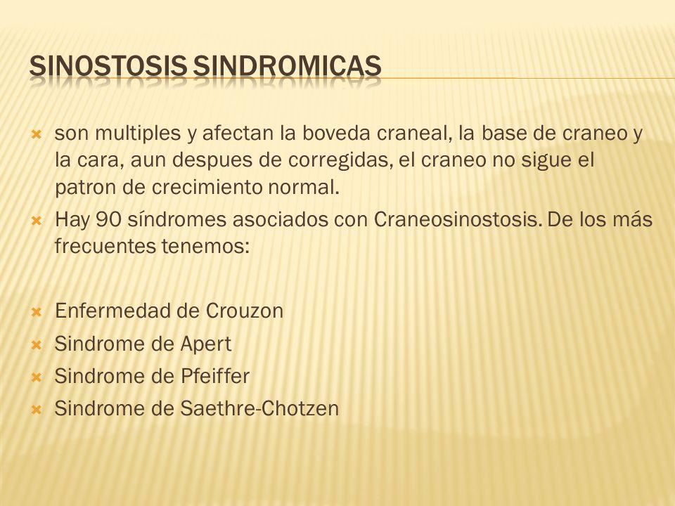 SINOSTOSIS SINDROMICAS