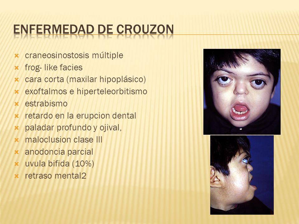 ENFERMEDAD DE CROUZON craneosinostosis múltiple frog- like facies