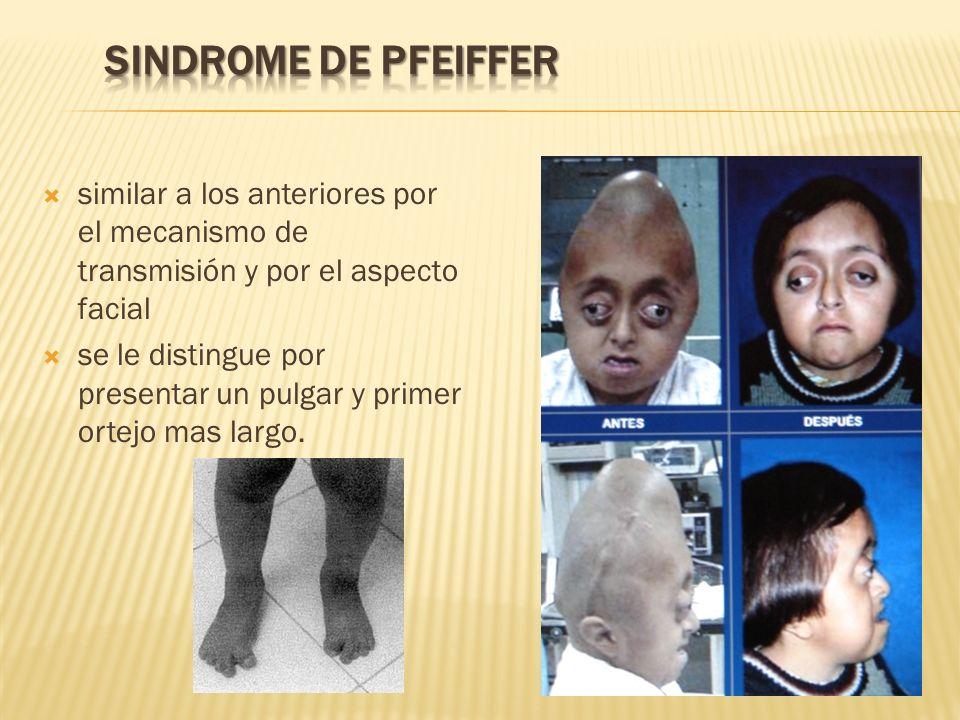 SINDROME DE PFEIFFER similar a los anteriores por el mecanismo de transmisión y por el aspecto facial.