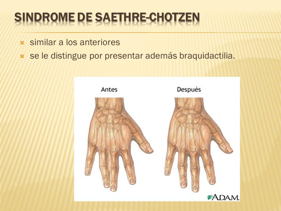 SINDROME DE SAETHRE-CHOTZEN