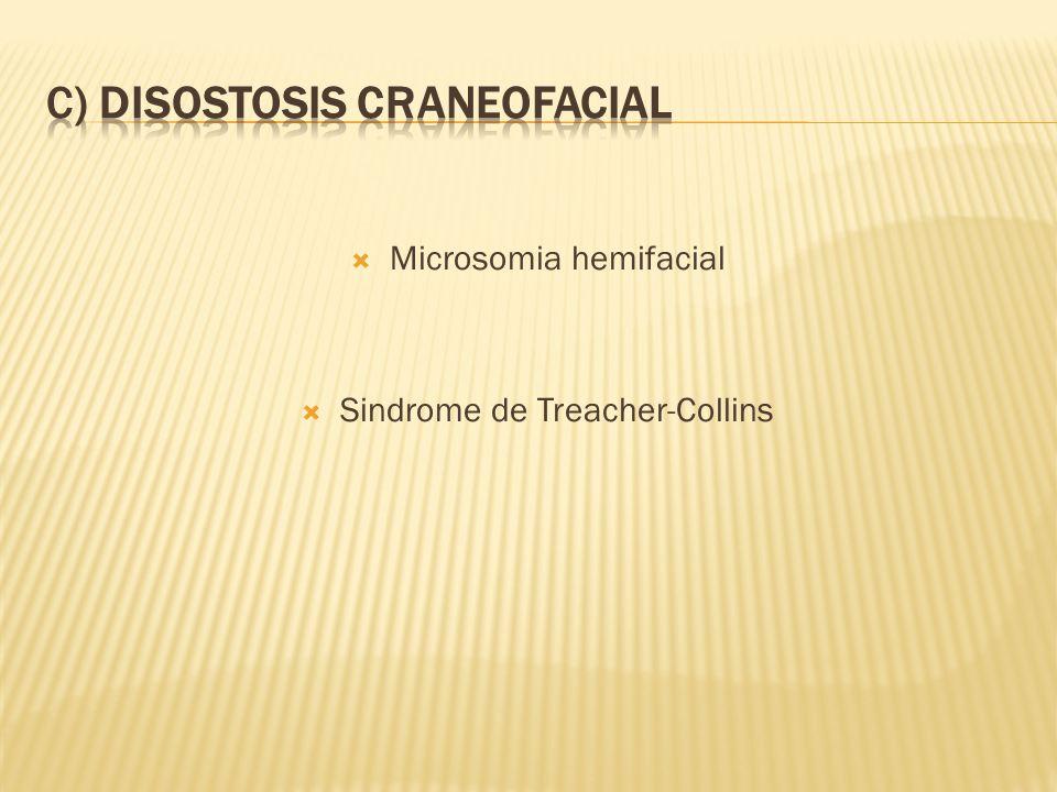C) DISOSTOSIS CRANEOFACIAL