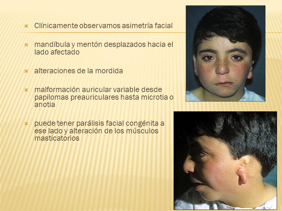 Clínicamente observamos asimetría facial