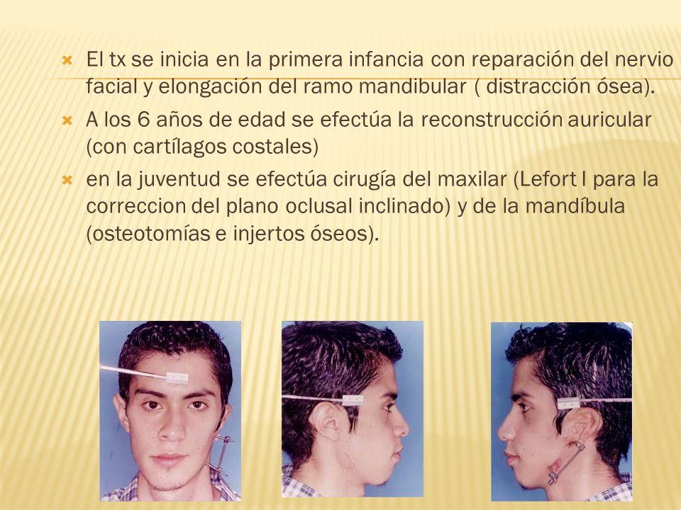 El tx se inicia en la primera infancia con reparación del nervio facial y elongación del ramo mandibular ( distracción ósea).