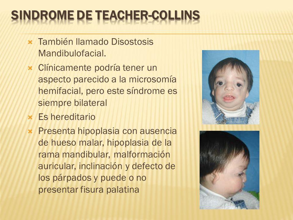 SINDROME DE TEACHER-COLLINS