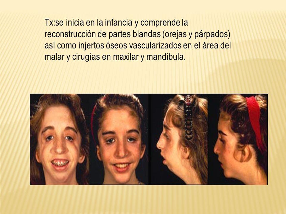 Tx:se inicia en la infancia y comprende la reconstrucción de partes blandas (orejas y párpados) así como injertos óseos vascularizados en el área del malar y cirugías en maxilar y mandíbula.