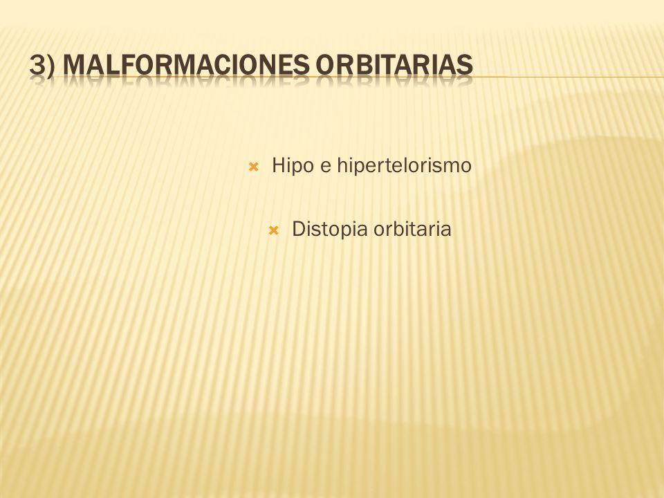 3) MALFORMACIONES ORBITARIAS