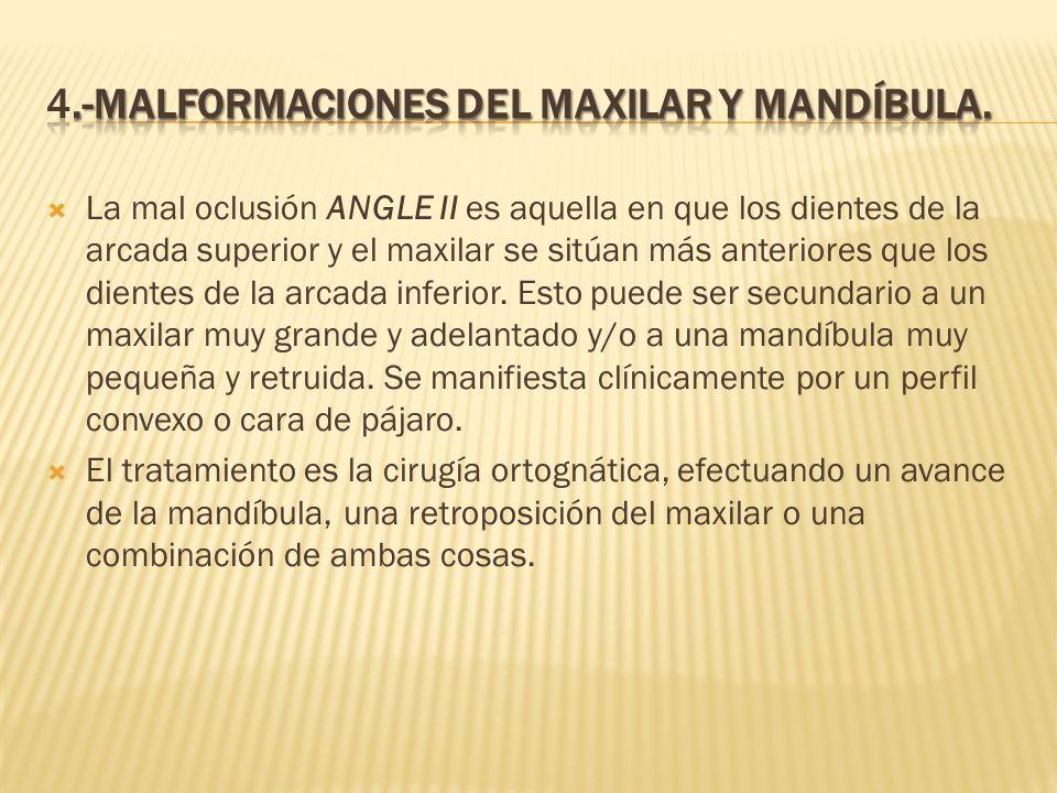 4.-MALFORMACIONES DEL MAXILAR Y MANDÍBULA.