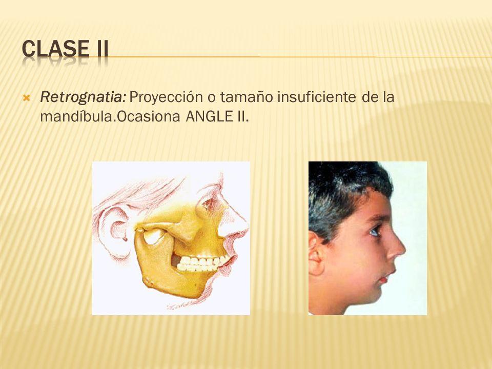 CLASE II Retrognatia: Proyección o tamaño insuficiente de la mandíbula.Ocasiona ANGLE II.