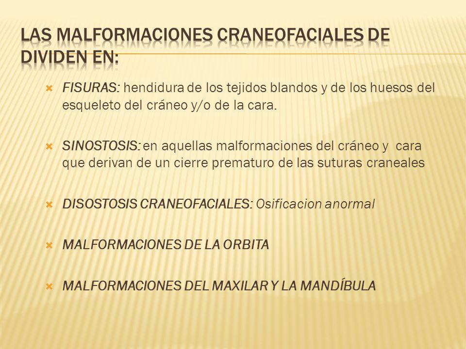 LAS MALFORMACIONES CRANEOFACIALES DE DIVIDEN EN: