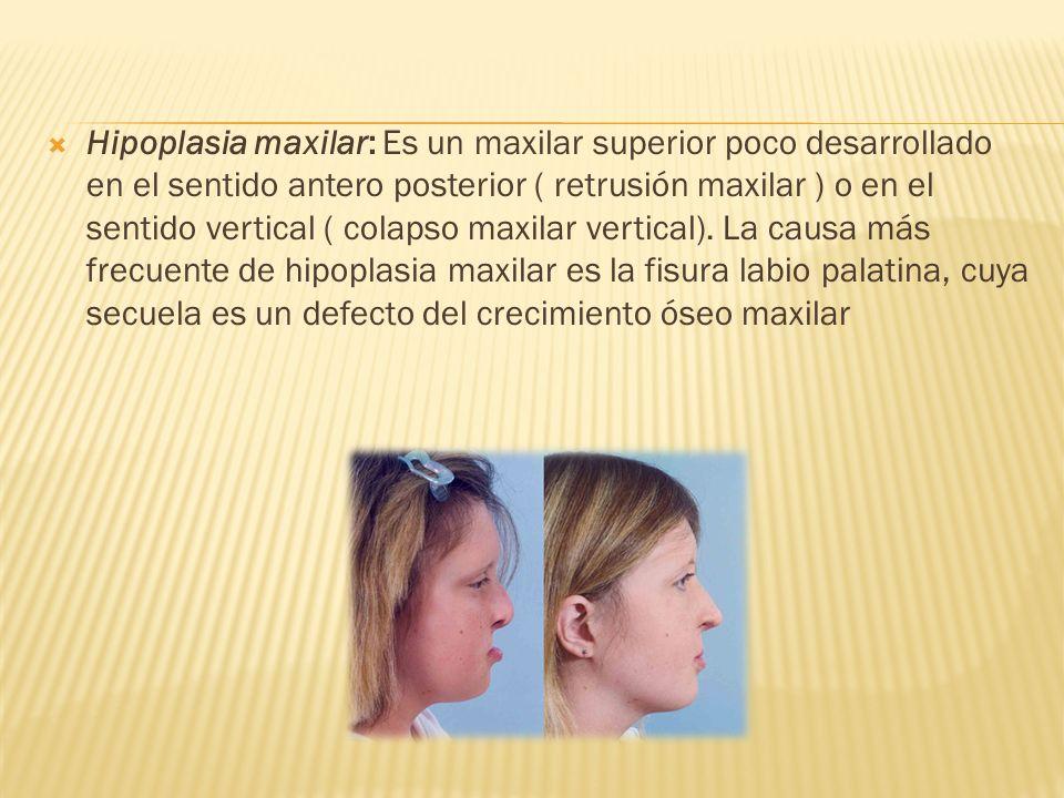Hipoplasia maxilar: Es un maxilar superior poco desarrollado en el sentido antero posterior ( retrusión maxilar ) o en el sentido vertical ( colapso maxilar vertical).