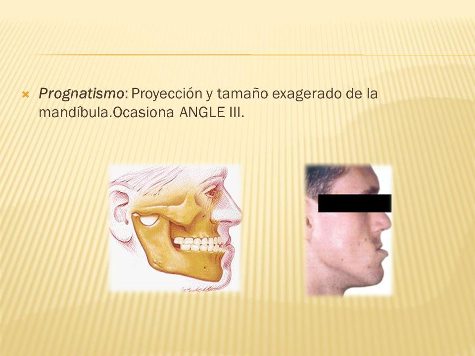 Prognatismo: Proyección y tamaño exagerado de la mandíbula