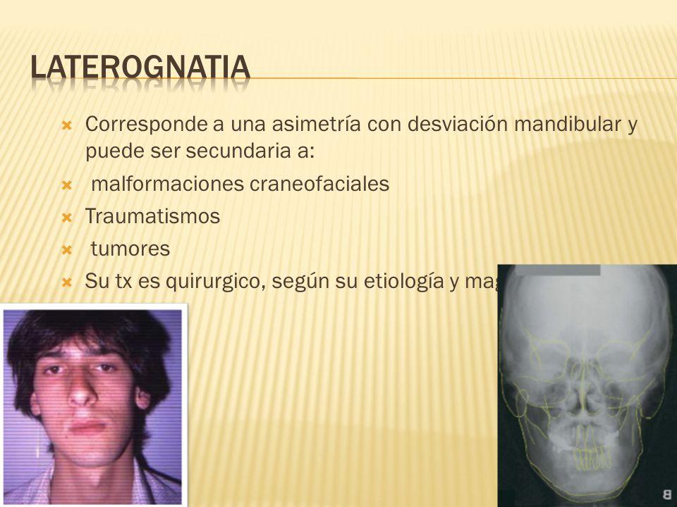 LATEROGNATIA Corresponde a una asimetría con desviación mandibular y puede ser secundaria a: malformaciones craneofaciales.