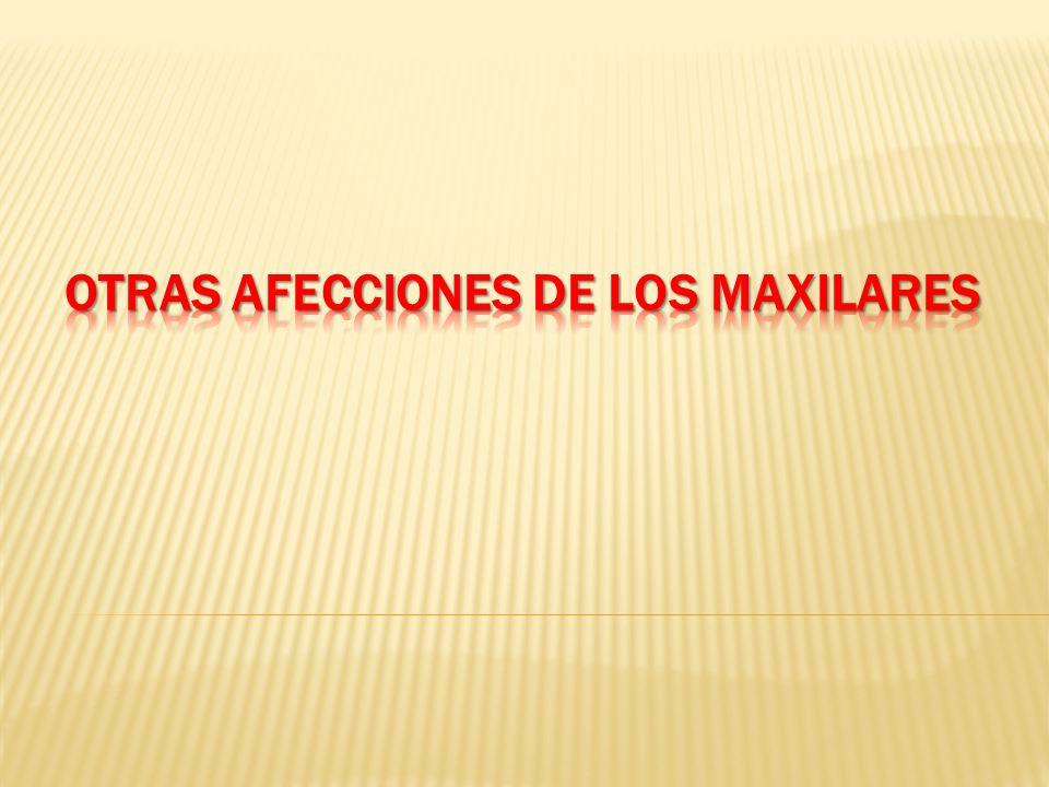 OTRAS AFECCIONES DE LOS MAXILARES