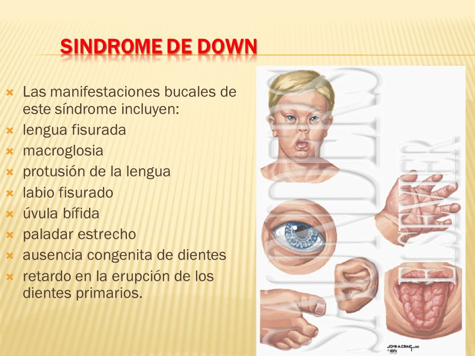 SINDROME DE DOWNLas manifestaciones bucales de este síndrome incluyen: lengua fisurada. macroglosia.
