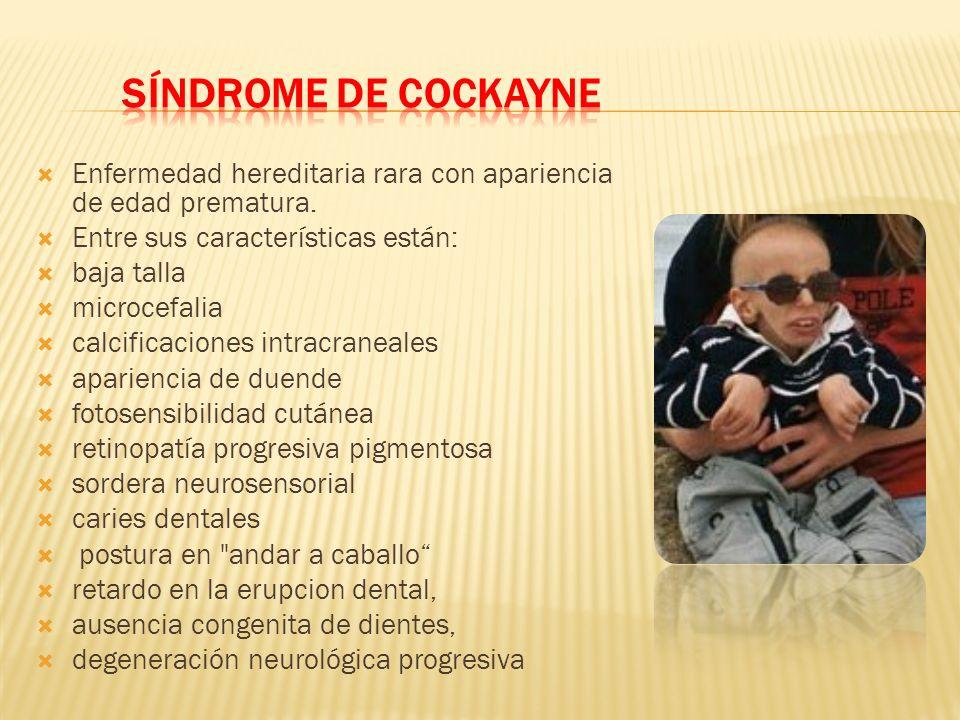 SÍNDROME DE COCKAYNE Enfermedad hereditaria rara con apariencia de edad prematura. Entre sus características están: