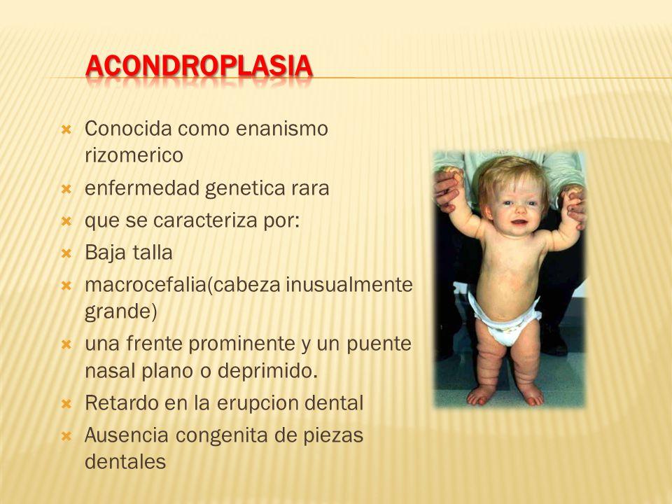 ACONDROPLASIA Conocida como enanismo rizomerico