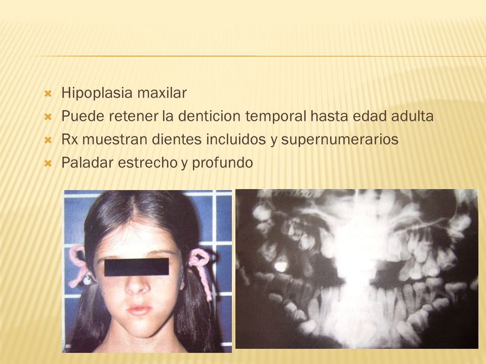 Hipoplasia maxilarPuede retener la denticion temporal hasta edad adulta. Rx muestran dientes incluidos y supernumerarios.