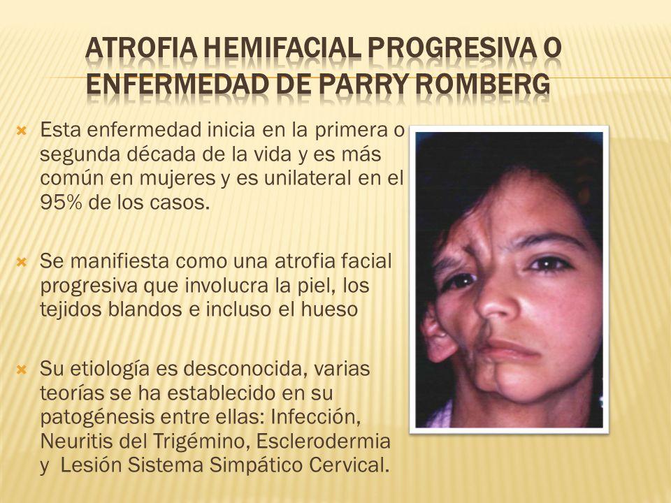 ATROFIA HEMIFACIAL PROGRESIVA O ENFERMEDAD DE PARRY ROMBERG