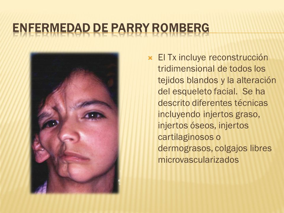 ENFERMEDAD DE PARRY ROMBERG