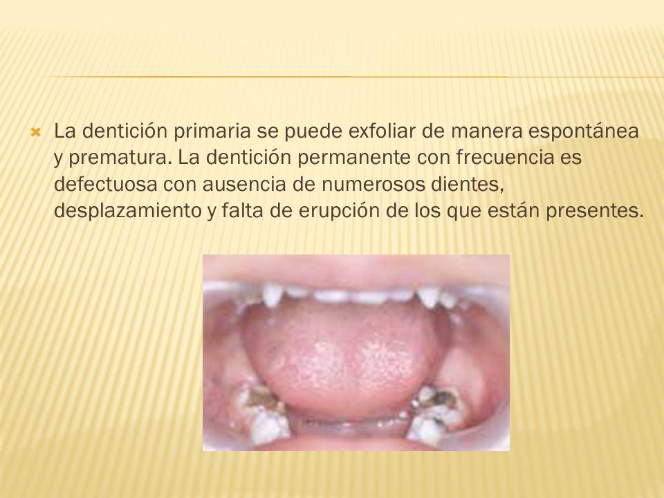 La dentición primaria se puede exfoliar de manera espontánea y prematura.
