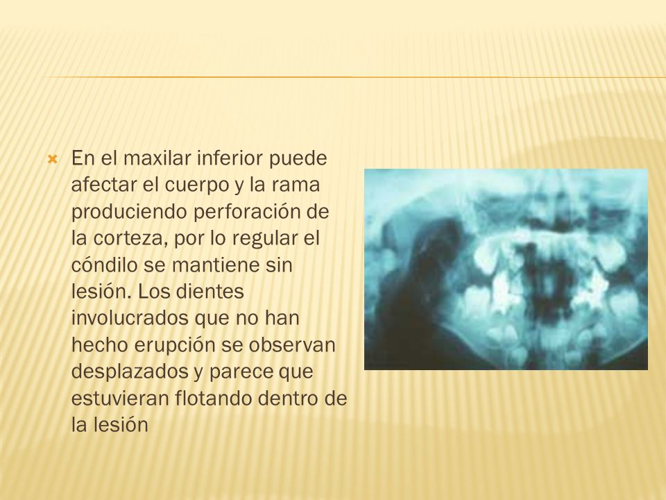 En el maxilar inferior puede afectar el cuerpo y la rama produciendo perforación de la corteza, por lo regular el cóndilo se mantiene sin lesión.