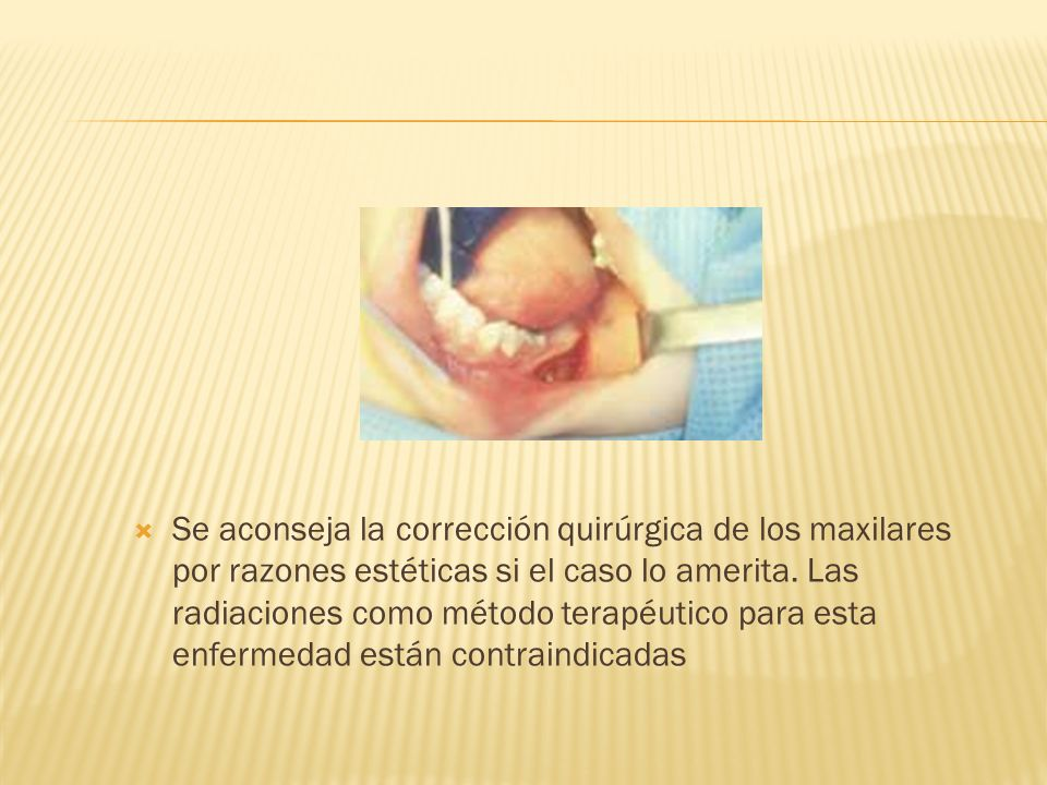 Se aconseja la corrección quirúrgica de los maxilares por razones estéticas si el caso lo amerita.