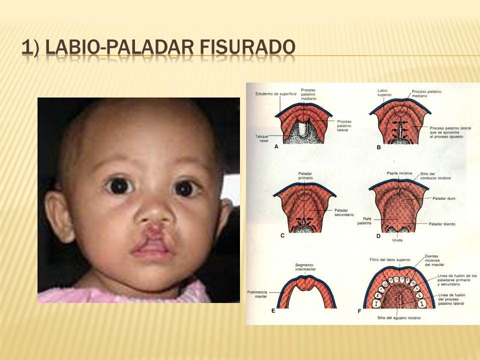 1) LABIO-PALADAR FISURADO