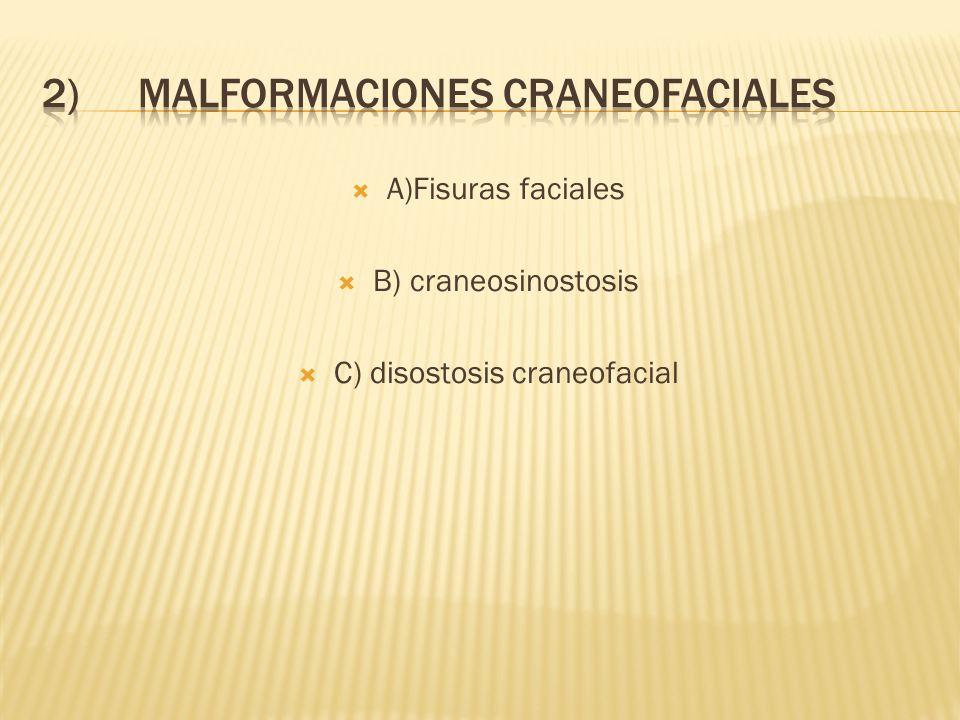 2) MALFORMACIONES CRANEOFACIALES