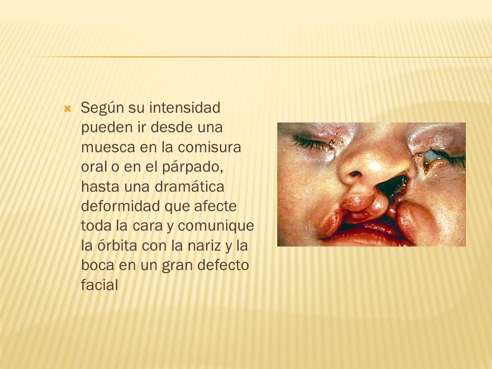 Según su intensidad pueden ir desde una muesca en la comisura oral o en el párpado, hasta una dramática deformidad que afecte toda la cara y comunique la órbita con la nariz y la boca en un gran defecto facial