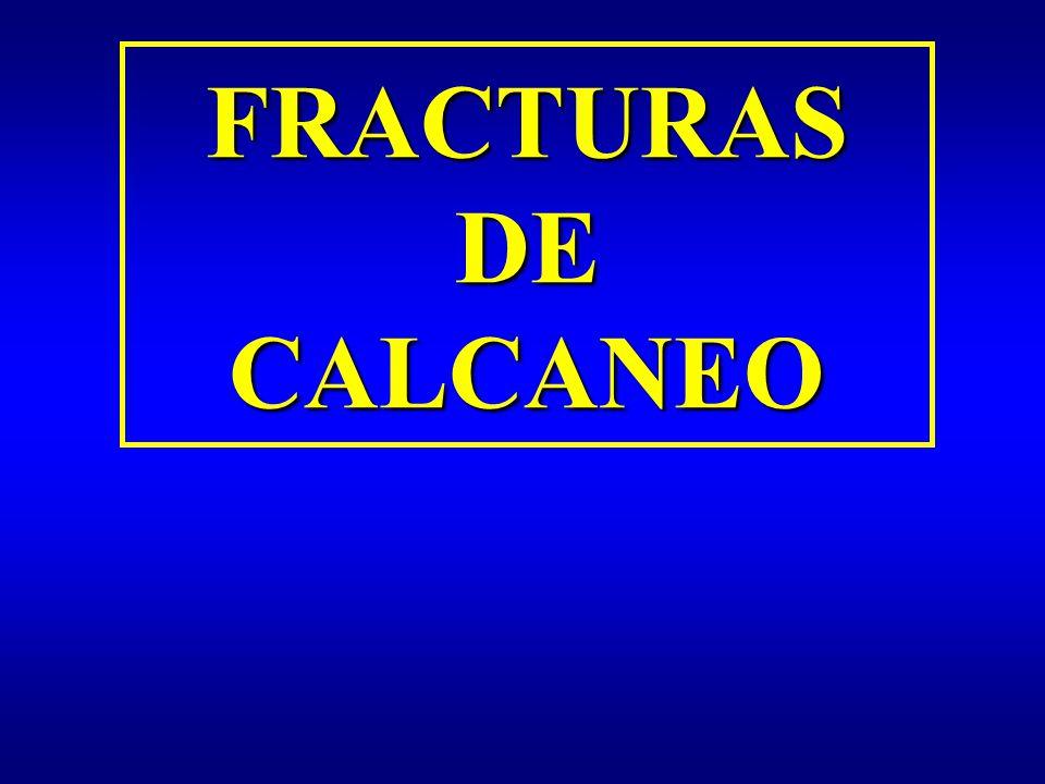 FRACTURAS DE CALCANEO. - ppt video online descargar