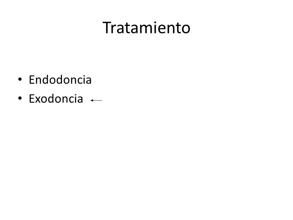 Tratamiento Endodoncia Exodoncia