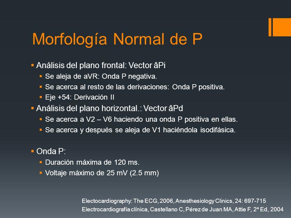 Morfología Normal de P Análisis del plano frontal: Vector âPi