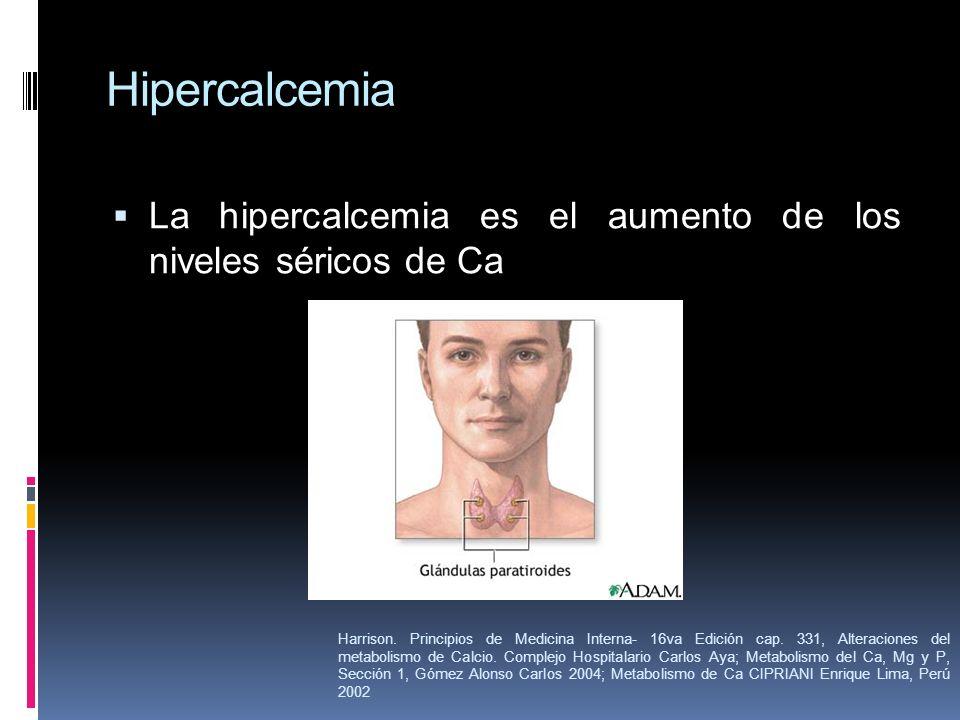 Hipercalcemia La hipercalcemia es el aumento de los niveles séricos de Ca.