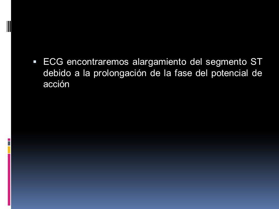 ECG encontraremos alargamiento del segmento ST debido a la prolongación de la fase del potencial de acción