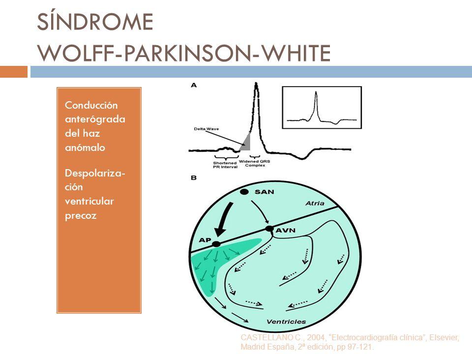 SÍNDROME WOLFF-PARKINSON-WHITE