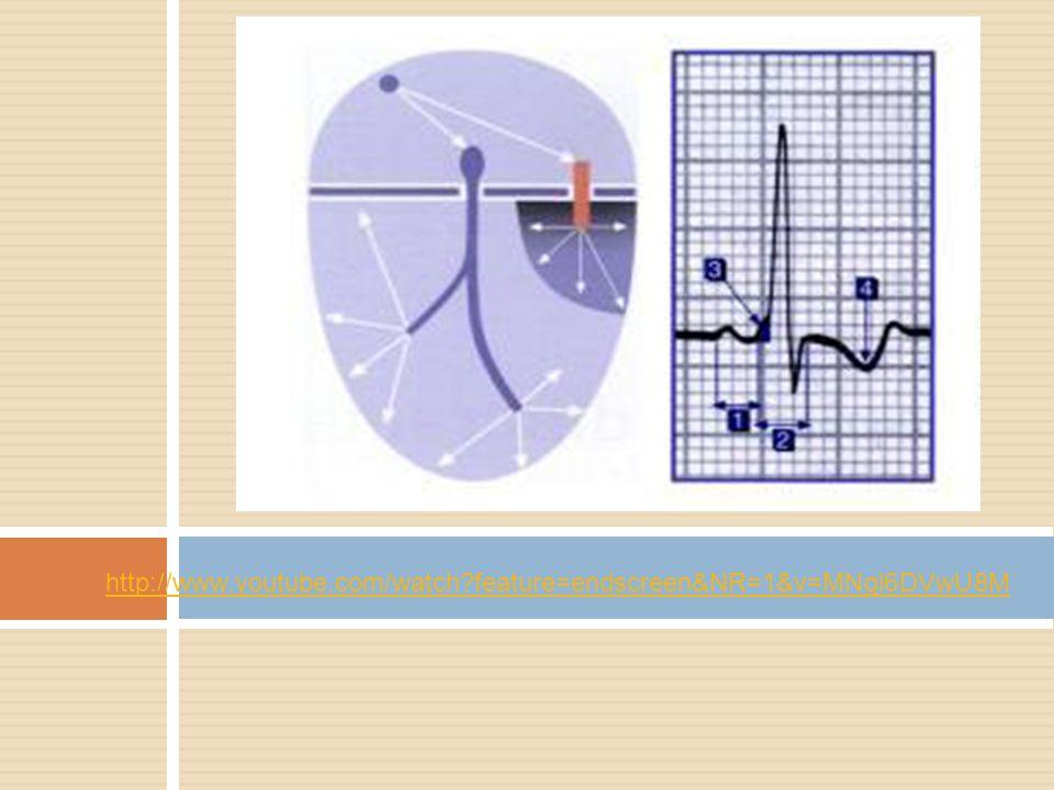 http://www.youtube.com/watch feature=endscreen&NR=1&v=MNgl6DVwU8M