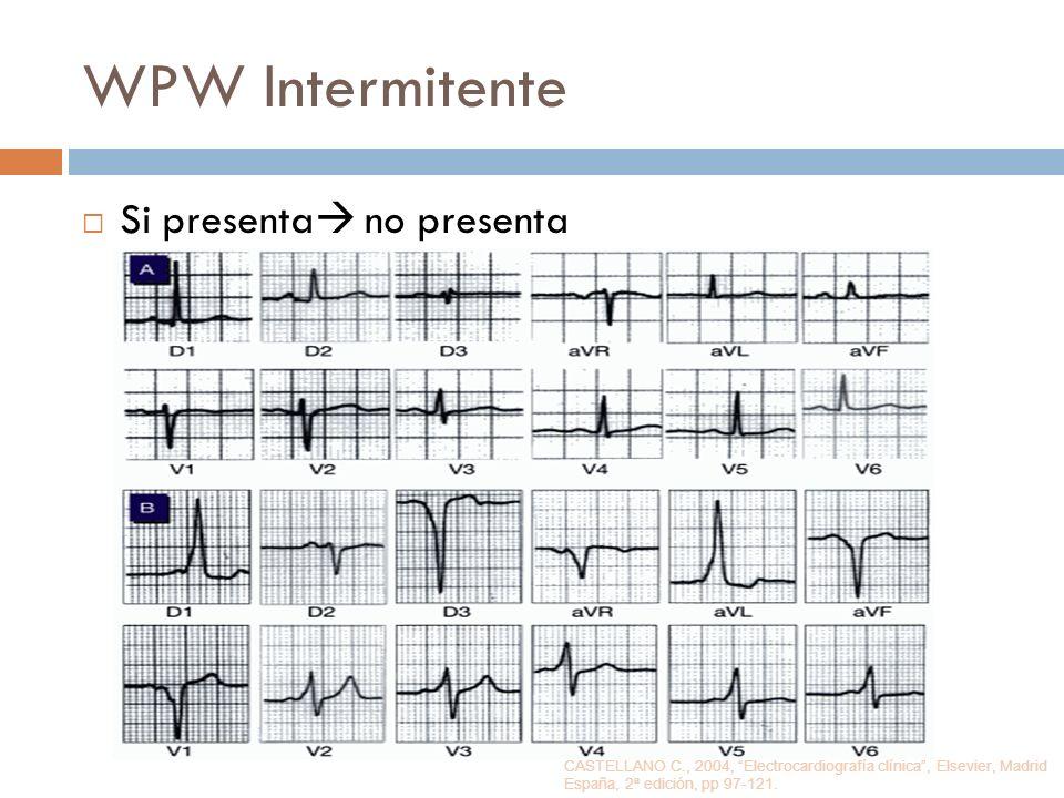 WPW Intermitente Si presenta no presenta