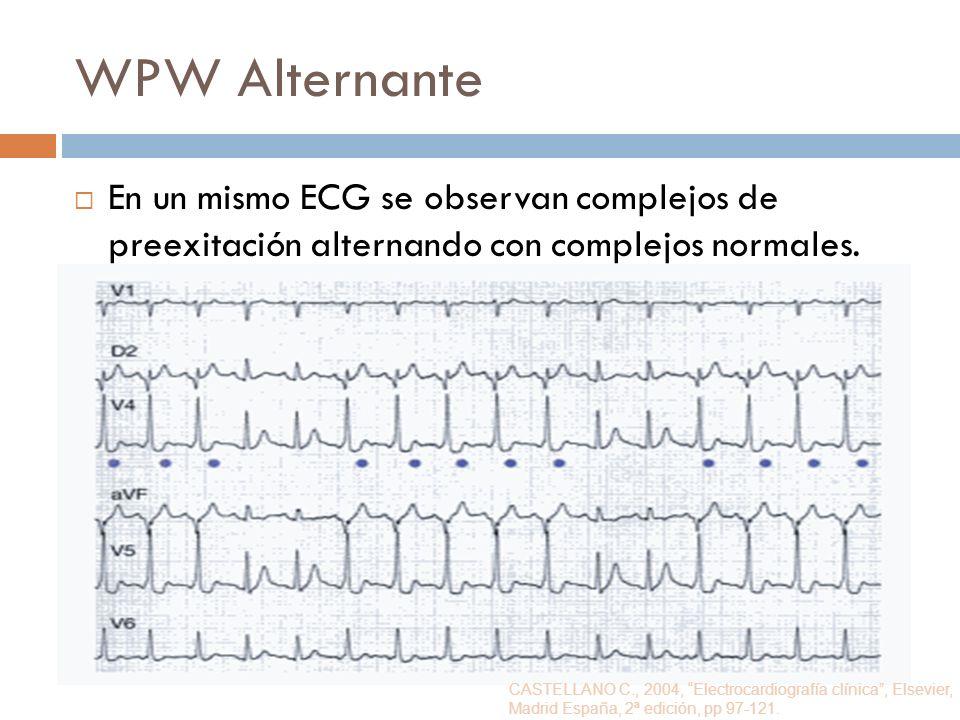 WPW AlternanteEn un mismo ECG se observan complejos de preexitación alternando con complejos normales.