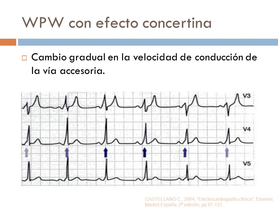 WPW con efecto concertina
