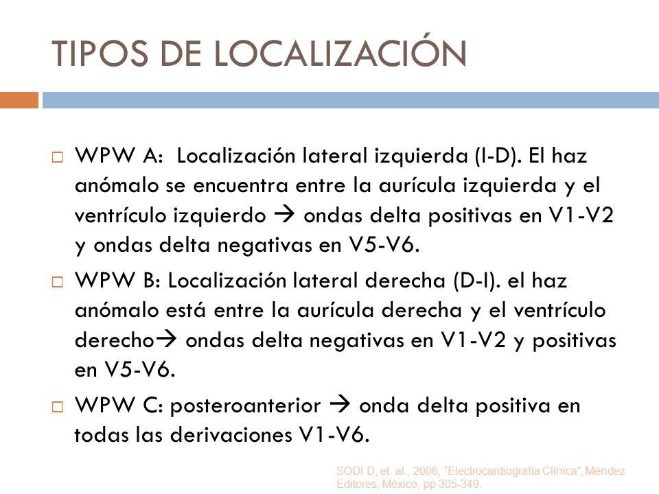 TIPOS DE LOCALIZACIÓN