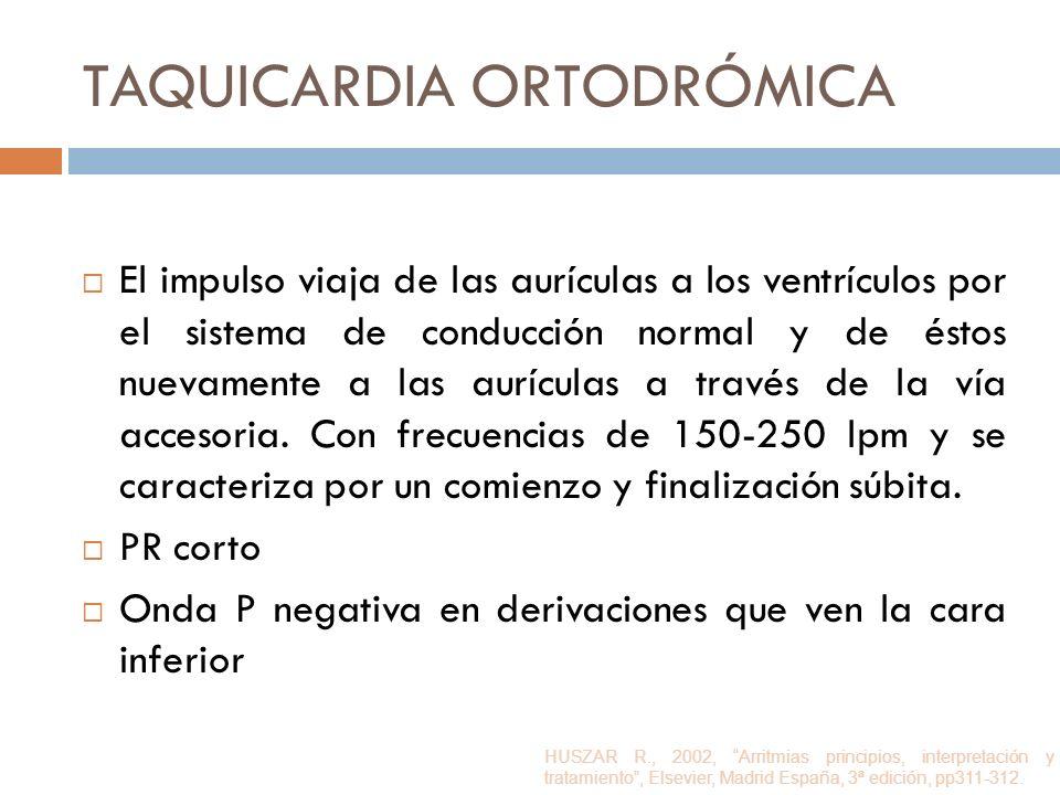 Taquicardia ortodrómica