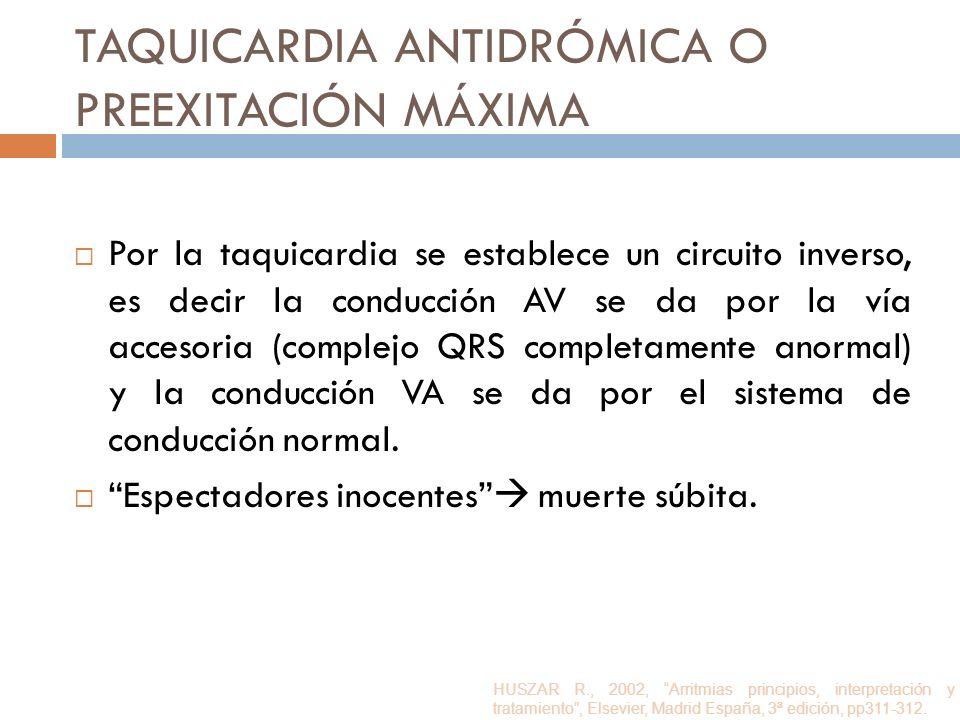 Taquicardia antidrómica o Preexitación máxima